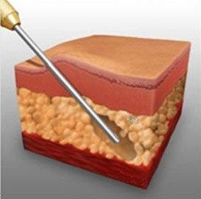 cirurgia-plastica-abdominoplastia-ou-lipoaspiracao