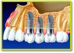 implantes-dentarios-precos-de-implante-dentario