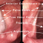 Como Cuidar da Saúde de Sua Voz – Cordas Vocais